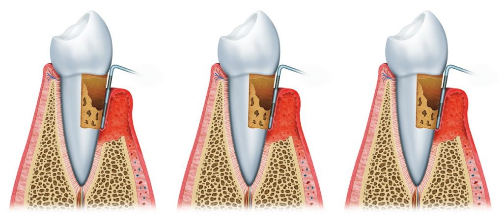PDM Advanced Periodontitis
